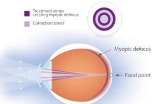 Anti-myopia soft contact lenses
